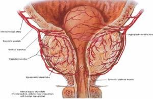 BPH_arteries