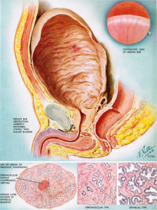 Thickening of the bladder wall muscle occurs in response to obstruction.